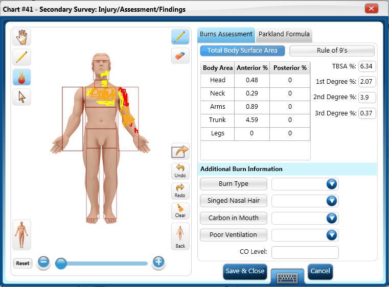 survey template microsoft